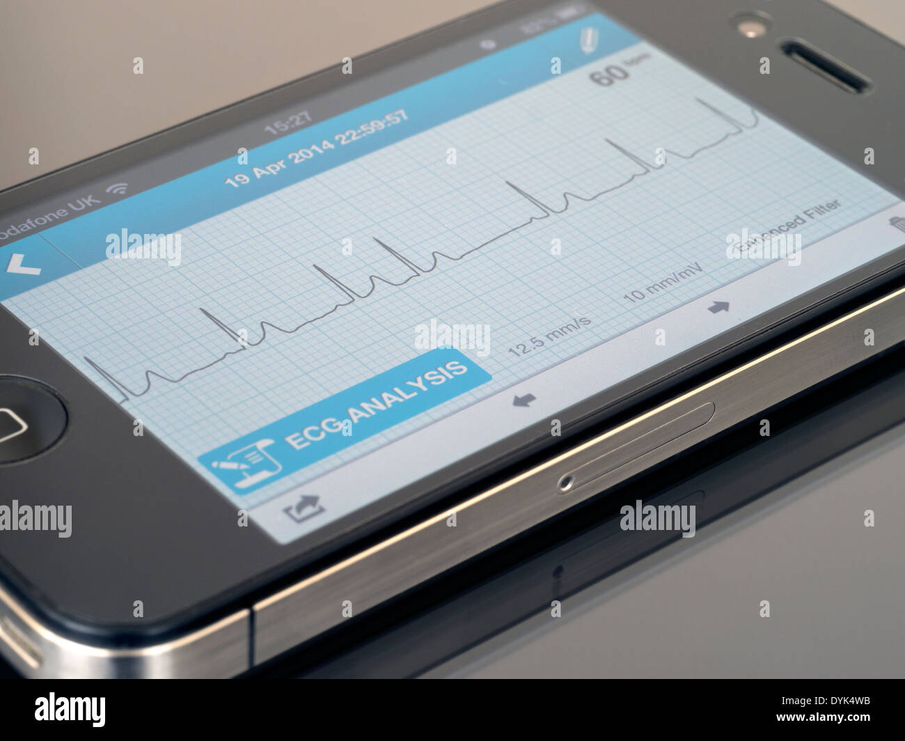 application apple blood pressure ekg rythm
